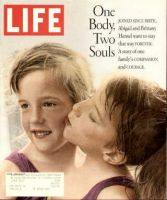 Life Magazine, April 1, 1996 - Conjoined Twin Girls